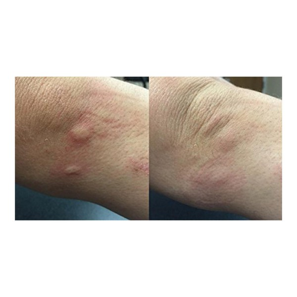 3 x Bug Bite Things - Natural Insect Bite Relief